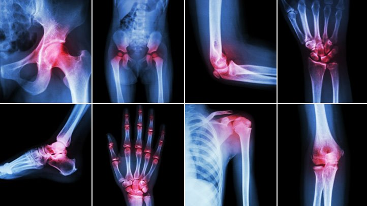 Prolotherapy Could be Your Best Solution for Chronic Pain