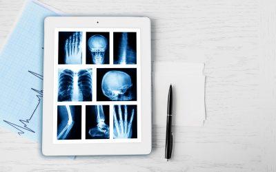 Osteoarthritis is Heart Disease for Joints