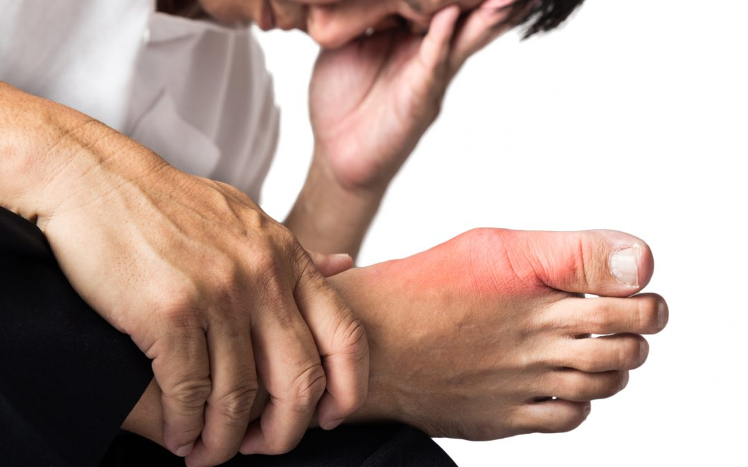 Top 7 Natural Tips for Getting Rid of Gout