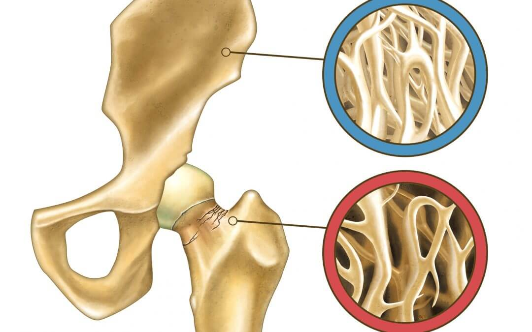 The Osteoporosis Crisis is Worse Than We Thought