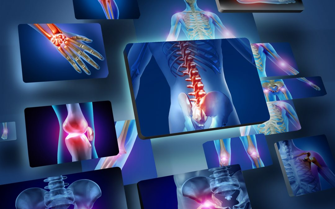 Top Natural Ways to Reverse Bone Loss